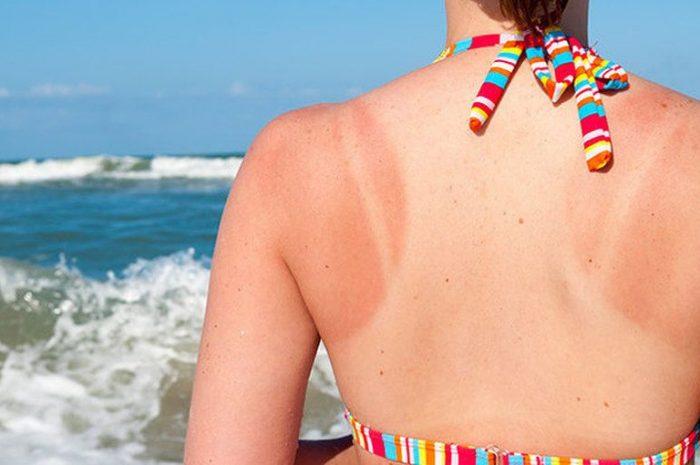 Действительно эффективное лечение солнечных ожогов